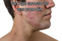 Get Rid of Dark Spots from Acne Prone