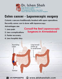Best Laparoscopic surgeons in Ahmedabad, Best Laparoscopic surgeons in Gujarat, Best Laparoscopic surgeons in Rajasthan, Best Laparoscopic surgeons in Madhya Pradesh, laparoscopic surgery, Laparoscopic surgeons Ahmedabad, Ahmedabad-Laparoscopic Surgeons, ...