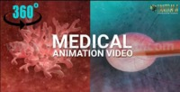 Project: 360° Panoramic interactive VR (3D Anaglyph videos) | Cancer Tumour Treatment  Client: 858. Sherri  Location: Columbus, Ohio  Treatment Video: https://youtu.be/W1up8kMVH9s For More: https://yantramstudio.com/medical-animation-outsour...