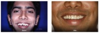 Congenital Treatment - Smilesforever.  Are you amongst those who have abnormal shape and form of teeth, which decreases your confidences in terms of your looks and personality!. So now you don't need to worry about it as we Smilesforever the best ...