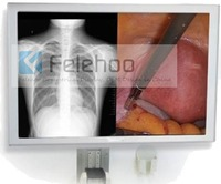 Buy High resolution 54.6 LED Endoscope and Surgical Display available at #Felehoo that support 16.7M real color.