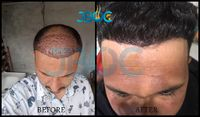 Need longer, smoother, or 2x large hair easily! You've come to the right place. Avail the most affordable hair transplant service in Chandigarh, India. Get quick guidance, expert hair fall, hair loss, hair damage, beard treatment with natural hair t...